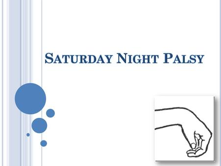 W HAT ' S S ATURDAY NIGHT PALSY ? Also known as wrist drop, or radial nerve palsy. It's a condition where a person can not extend their wrist. It's called.