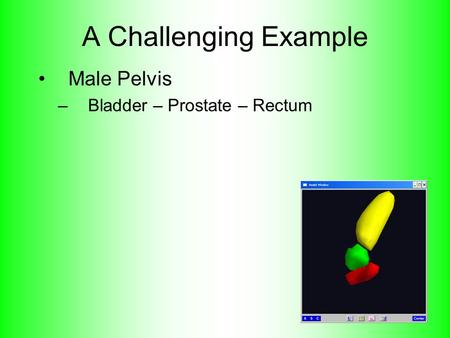 A Challenging Example Male Pelvis –Bladder – Prostate – Rectum.