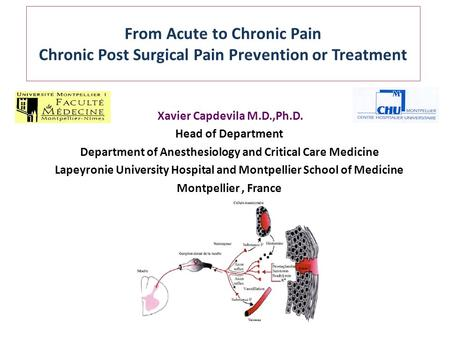 From Acute to Chronic Pain Chronic Post Surgical Pain Prevention or Treatment Xavier Capdevila M.D.,Ph.D. Head of Department Department of Anesthesiology.