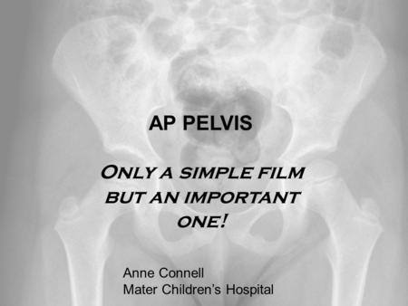 Anne Connell Mater Children's Hospital AP PELVIS Only a simple film but an important one! Anne Connell Mater Children's Hospital.