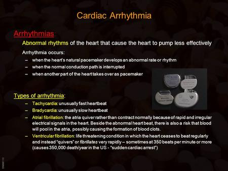 BIMM118 Cardiac Arrhythmia Arrhythmias : Abnormal rhythms of the heart that cause the heart to pump less effectively Arrhythmia occurs: –when the heart's.