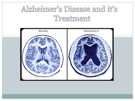  Alzheimer's disease (AD), also known as Senile Dementia of the Alzheimer Type (SDAT) or simply Alzheimer's is the most common form of dementia. This.