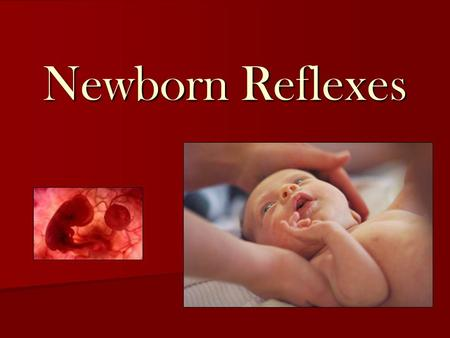 Newborn Reflexes. What is a newborn reflex? Newborn reflexes are reflex actions originating in the central nervous system (brain) that are exhibited by.