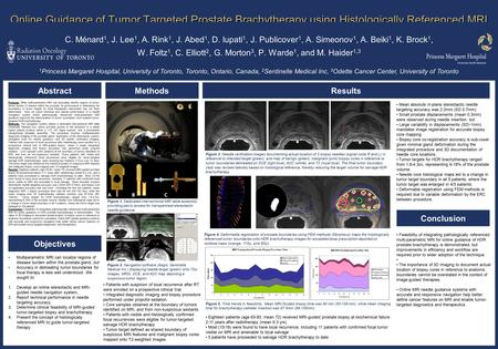 Online Guidance of Tumor Targeted Prostate Brachytherapy using Histologically Referenced MRI C. Ménard 1, J. Lee 1, A. Rink 1, J. Abed 1, D. Iupati 1,