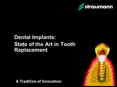 Dental Implants: State of the Art in Tooth Replacement Dental Implants: State of the Art in Tooth Replacement A Tradition of Innovation.