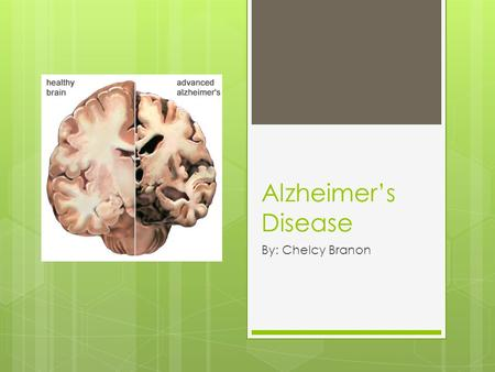 Alzheimer's Disease By: Chelcy Branon. Facts  In 2006, there were 26.6 million sufferers worldwide  Costs 100 billion dollars per year.