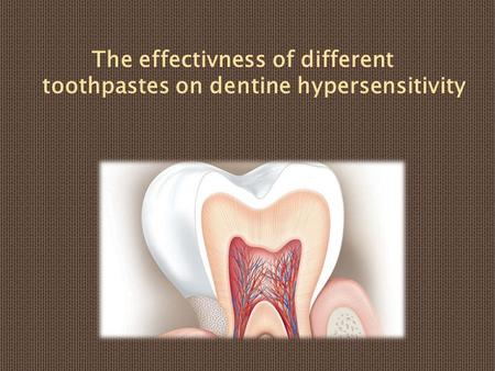 The effectivness of different toothpastes on dentine hypersensitivity.