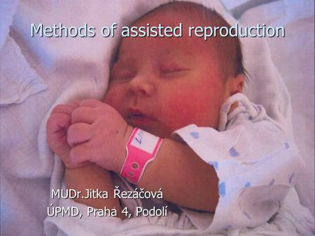 Methods of assisted reproduction MUDr.Jitka Řezáčová ÚPMD, Praha 4, Podolí.