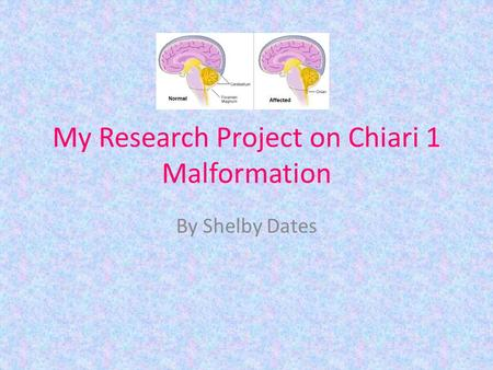 My Research Project on Chiari 1 Malformation By Shelby Dates.