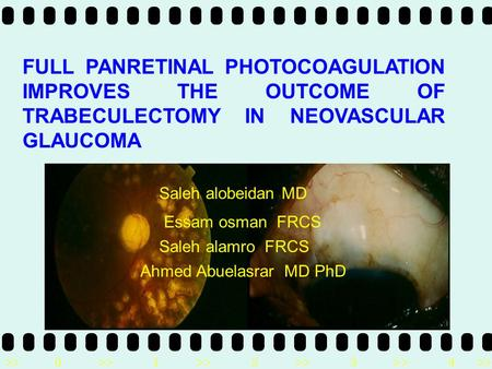 >>0 >>1 >> 2 >> 3 >> 4 >> FULL PANRETINAL PHOTOCOAGULATION IMPROVES THE OUTCOME OF TRABECULECTOMY IN NEOVASCULAR GLAUCOMA Saleh alobeidan MD Essam osman.
