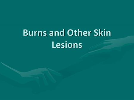 Burns and Other Skin Lesions. Classification First Degree Burn: Epidermis only.