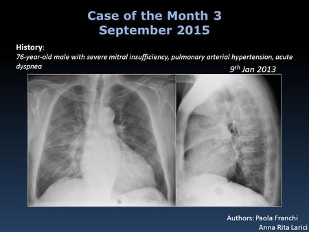 History : 76-year-old male with severe mitral insufficiency, pulmonary arterial hypertension, acute dyspnea Case of the Month 3 September 2015 Authors: