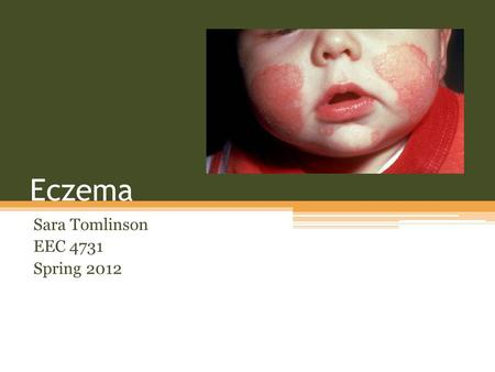 Eczema Sara Tomlinson EEC 4731 Spring 2012. Overview Eczema is a inflammatory skin condition which causes the skin to become inflamed of irritated. Eczema.