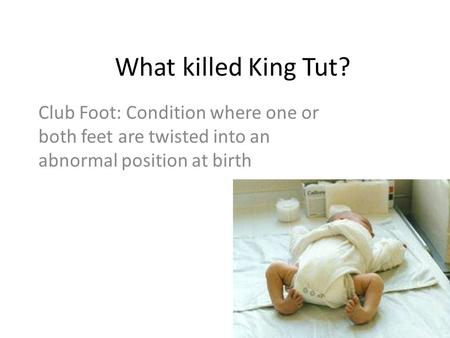 What killed King Tut? Club Foot: Condition where one or both feet are twisted into an abnormal position at birth.