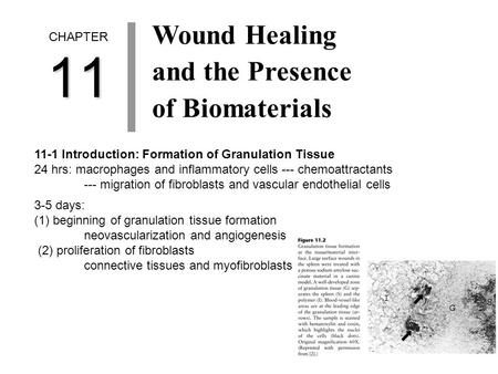 CHAPTER11 Wound Healing and the Presence of Biomaterials 11-1 Introduction: Formation of Granulation Tissue 24 hrs: macrophages and inflammatory cells.