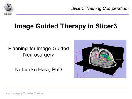 Image Guided Therapy in Slicer3 Planning for Image Guided Neurosurgery Nobuhiko Hata, PhD Slicer3 Training Compendium Neurosurgery Tutorial, N. Hata.