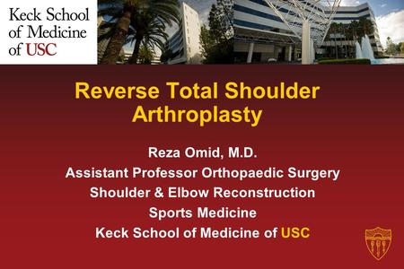 Reverse Total Shoulder Arthroplasty Reza Omid, M.D. Assistant Professor Orthopaedic Surgery Shoulder & Elbow Reconstruction Sports Medicine Keck School.