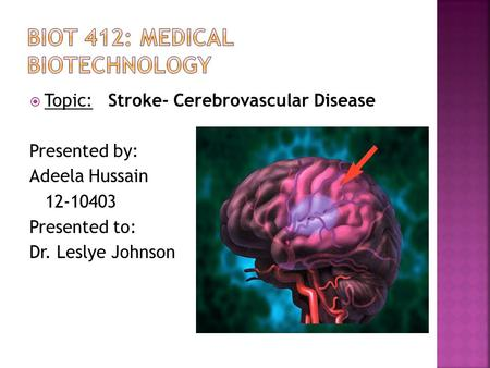  Topic: Stroke- Cerebrovascular Disease Presented by: Adeela Hussain 12-10403 Presented to: Dr. Leslye Johnson.