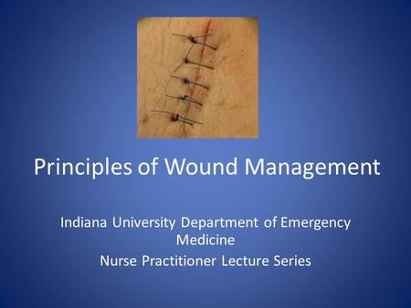 Principles of Wound Management Indiana University Department of Emergency Medicine Nurse Practitioner Lecture Series.