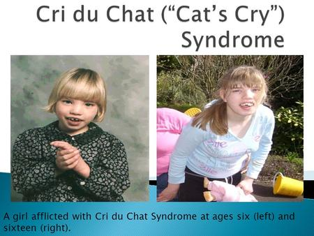 A girl afflicted with Cri du Chat Syndrome at ages six (left) and sixteen (right).