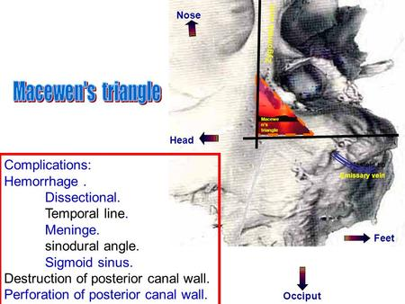 Zygomatic arch Mastoid tip Nose Feet Occiput Emissary vein Macewe n's triangle Complications: Hemorrhage. Dissectional. Temporal line. Meninge. sinodural.