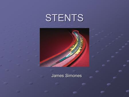 STENTS James Simones. History Balloon Angioplasty introduced in the late 70's Approximately 30% would close up after Some so severe that the artery would.