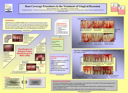 Introduction: Gingival recession is defined by Miller et al, as an exposition of the radicular surface of the tooth due to destruction of the marginal.