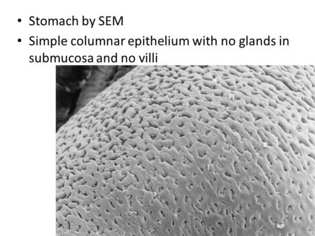 Stomach by SEM Simple columnar epithelium with no glands in submucosa and no villi.