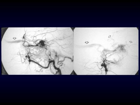 Dural Arteriovenous Fistulae Static or Dynamic? Cognard et al –seven patients with documented worsening of venous drainage –aggressive natural history.