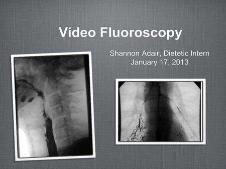 Video Fluoroscopy Shannon Adair, Dietetic Intern January 17, 2013 Shannon Adair, Dietetic Intern January 17, 2013.