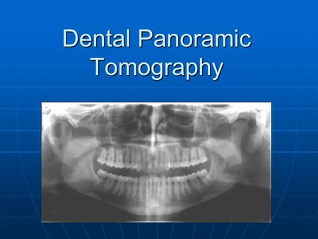 Dental Panoramic Tomography