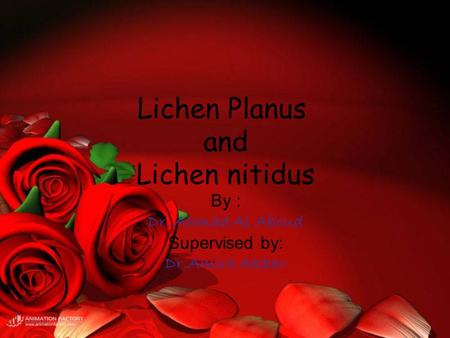 Lichen Planus and Lichen nitidus By : Dr. Ahmad Al Aboud Supervised by: Dr.Amira Akbar.