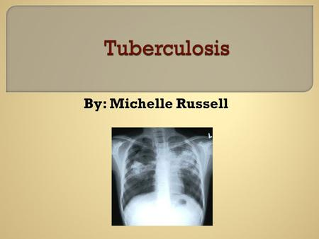 By: Michelle Russell.  To become familiar with the disease process of TB Transmission symptoms Precautions  Nursing Diagnoses  Interventions.