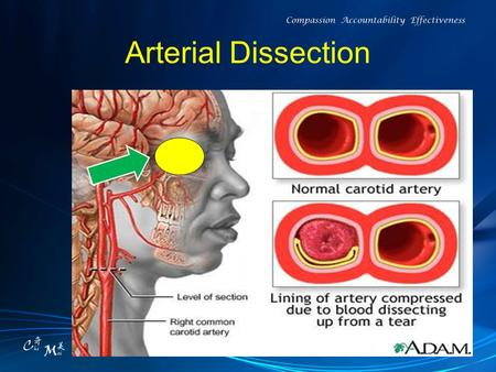 "Arterial Dissection. Pitfalls (1) ""I have a pain in my neck and (or) head unlike anything I have ever had before."""