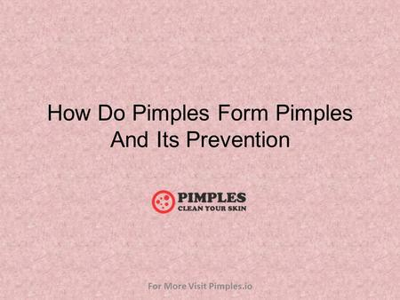 How Do Pimples Form Pimples And Its Prevention For More Visit Pimples.io.