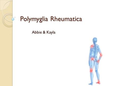 Polymyglia Rheumatica Abbie & Kayla. What PMR is: o Polymyalgia Rheumatica (or PMR) is a syndrome that involves having intense pain in your muscles. Especially.