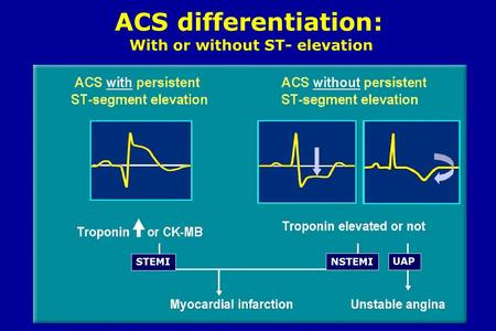 ACS differentiation: With or without ST- elevation STEMI NSTEMI UAP.