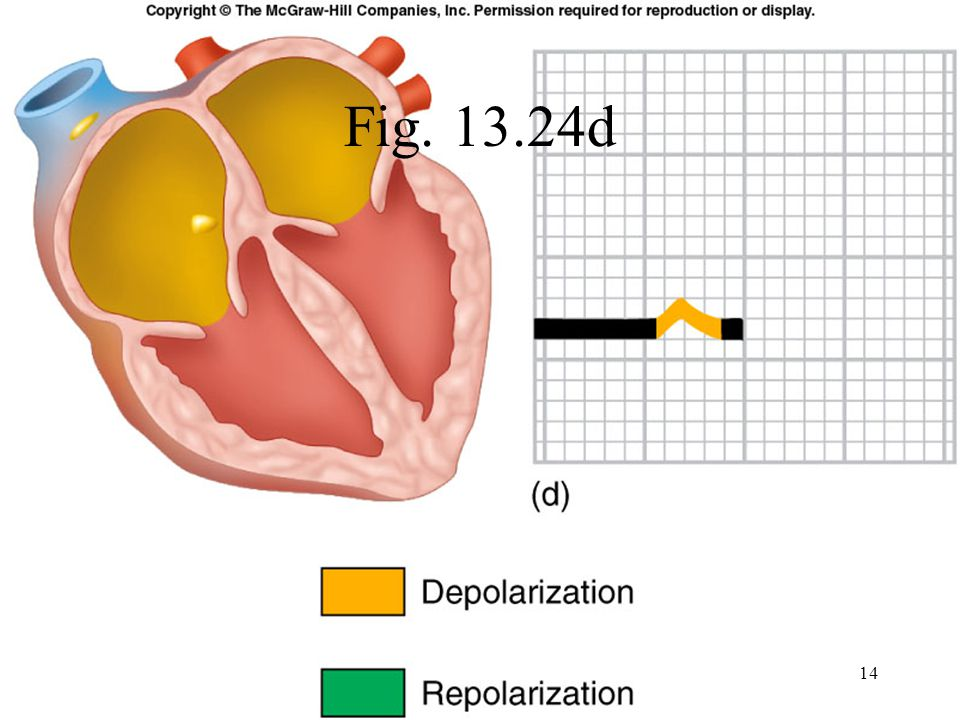 Elements of the ECG: P wave Depolarization of both atria; Relationship between P and QRS helps distinguish various cardiac arrhythmias Shape and duration of P may indicate atrial enlargement 15