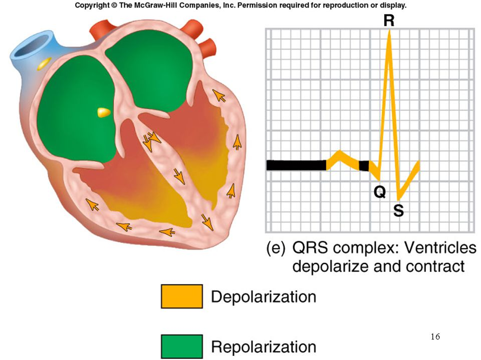 QRS complex: Represents ventricular depolarization Larger than P wave because of greater muscle mass of ventricles Normal duration = 0.08-0.12 seconds Its duration, amplitude, and morphology are useful in diagnosing cardiac arrhythmias, ventricular hypertrophy, MI, electrolyte derangement, etc.