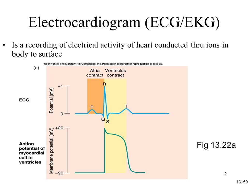 ECG Graph Paper Runs at a paper speed of 25 mm/sec Each small block of ECG paper is 1 mm 2 At a paper speed of 25 mm/s, one small block equals 0.04 s Five small blocks make up 1 large block which translates into 0.20 s (200 msec) Hence, there are 5 large blocks per second Voltage: 1 mm = 0.1 mV between each individual block vertically 3