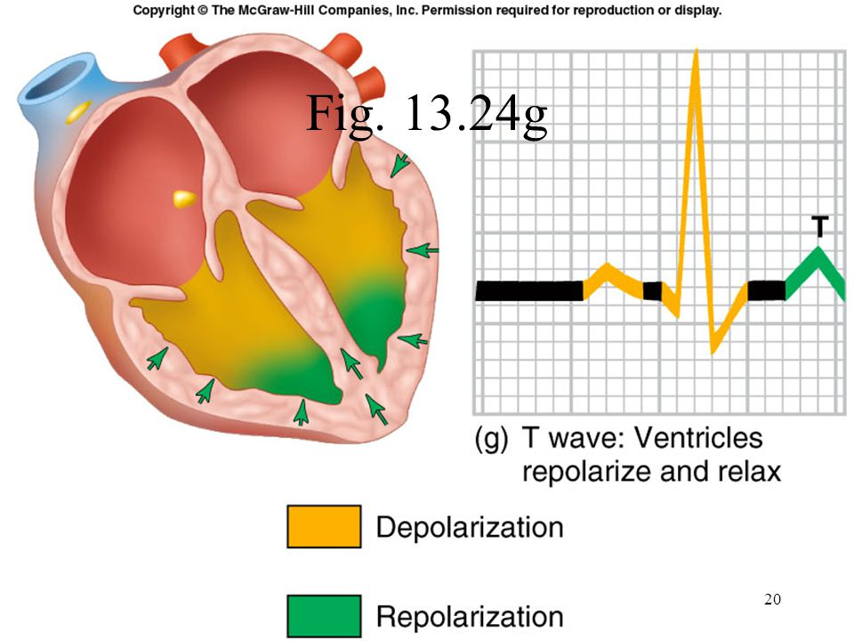 T wave: Represents repolarization or recovery of ventricles Interval from beginning of QRS to apex of T is referred to as the absolute refractory period 21
