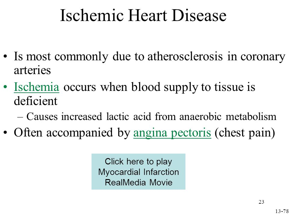 Ischemic Heart Disease Detectable by changes in S-T segment of ECG Myocardial infarction (MI) is a heart attack –Diagnosed by high levels of creatine phosphate (CPK) & lactate dehydrogenase (LDH) Fig 13.34 13-79 24