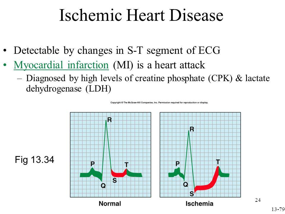 Arrhythmias Detected on ECG Arrhythmias are abnormal heart rhythms Heart rate 100/min is tachycardia Fig 13.35 13-80 25