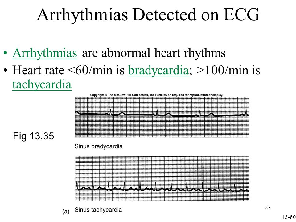 Arrhythmias Detected on ECG continued In flutter contraction rates can be 200-300/min In fibrillation contraction of myocardial cells is uncoordinated & pumping ineffective –Ventricular fibrillation is life-threatening Electrical defibrillation resynchronizes heart by depolarizing all cells at same time Fig 13.35 13-81 26