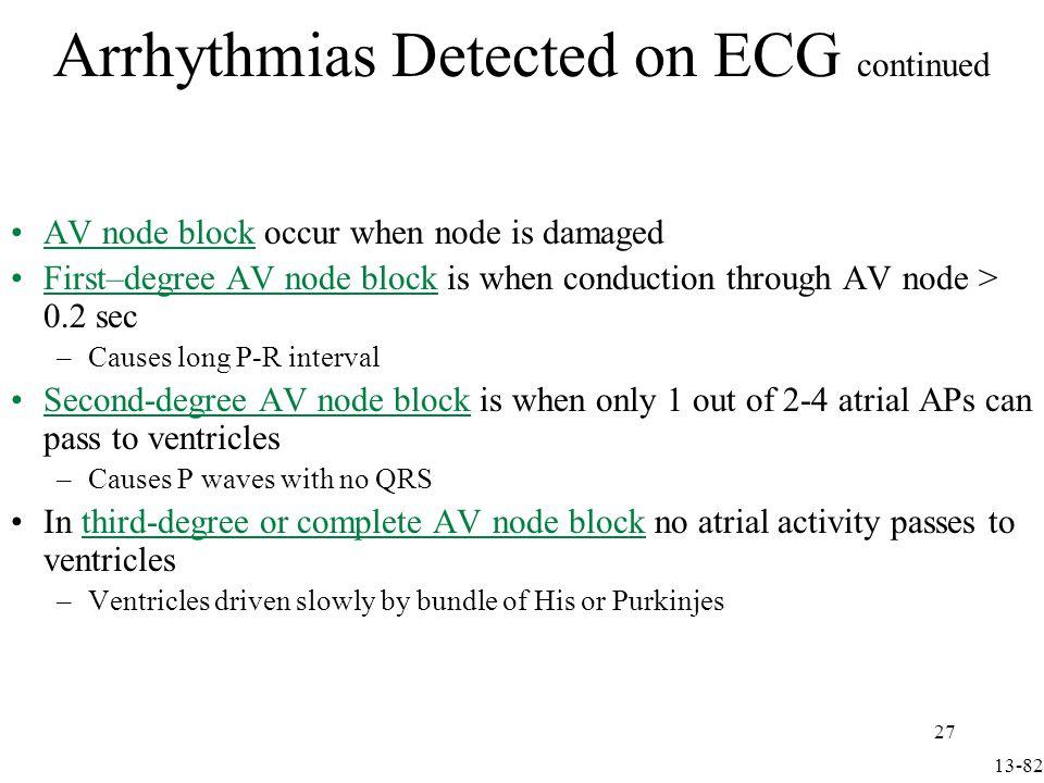 AV node block occurs when node is damaged First–degree AV node block is when conduction thru AV node > 0.2 sec –Causes long P-R interval Arrhythmias Detected on ECG continued Fig 13.36 13-83 28