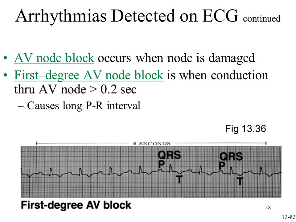 Second-degree AV node block is when only 1 out of 2-4 atrial APs can pass to ventricles –Causes P waves with no QRS Arrhythmias Detected on ECG continued Fig 13.36 13-84 29