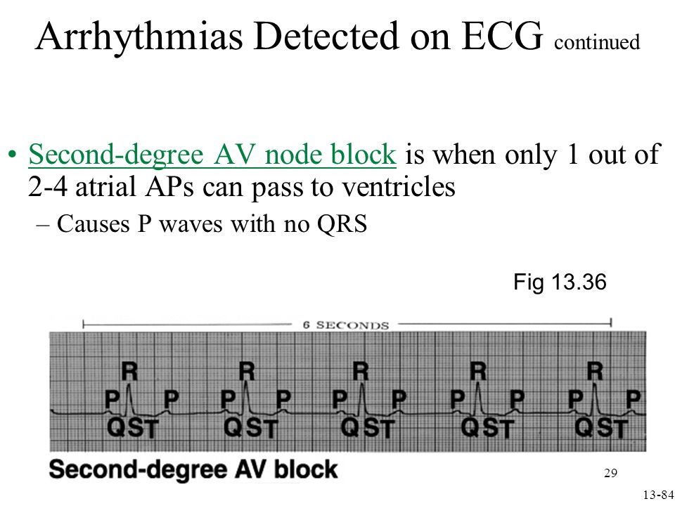 In third-degree or complete AV node block, no atrial activity passes to ventricles –Ventricles are driven slowly by bundle of His or Purkinjes Arrhythmias Detected on ECG continued Fig 13.36 13-85 30