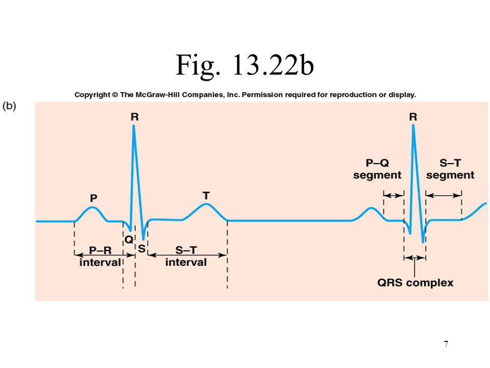 3 distinct waves are produced during cardiac cycle P wave caused by atrial depolarization QRS complex caused by ventricular depolarization T wave results from ventricular repolarization ECG Fig 13.24 13-63 8