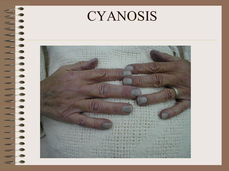 BLOOD PRESSURE SYSTOLIC 110-140 mmHg DIASTOLIC 70-90 mmHg