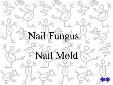 Nail Fungus Nail Mold. Fungi Fungi are vegetable parasites including all types of fungus or moldFungi are vegetable parasites including all types of fungus.